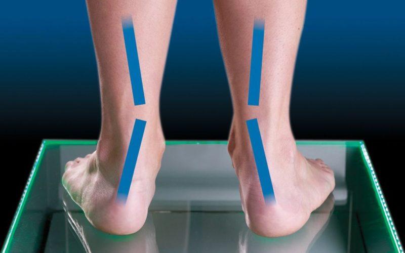 iperpronazione o piedi piatti